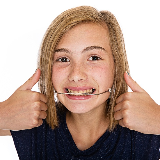 Young woman with headgear orthodontic appliance