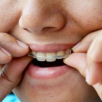 Closeup of patient placing orthodontic appliance
