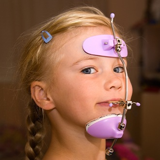 Girl with dentofacial orthopedics