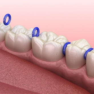 Animated smile with tooth spacers