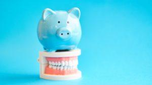 Dayville orthodontist blue piggy bank on top of model teeth