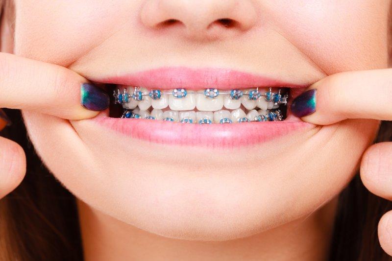 Closeup of girl showing her metal braces